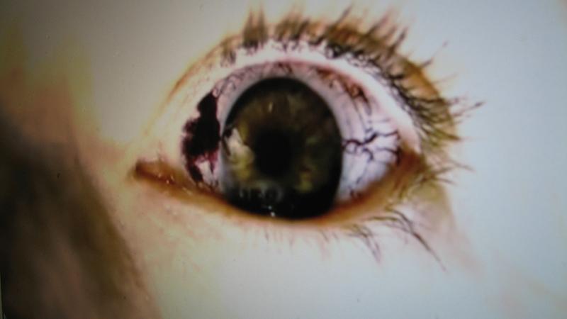 《惊变28周》--可爱的眼睛